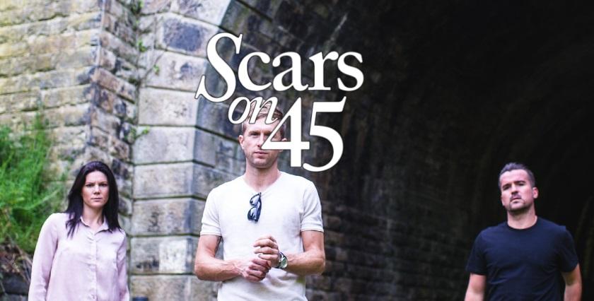 SCARSON45