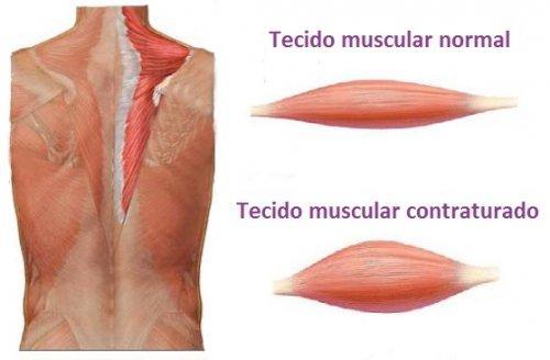 contratura-muscular-500x328